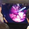MIC,8K内視鏡および顕微鏡における臨床試験の成果を発表
